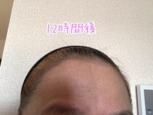 12時間後のオーガニックヘアタトゥー